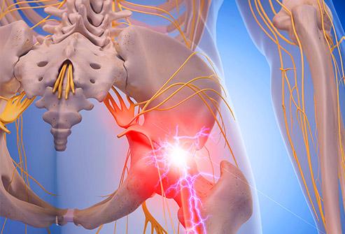 sciatica pain bradenton fl