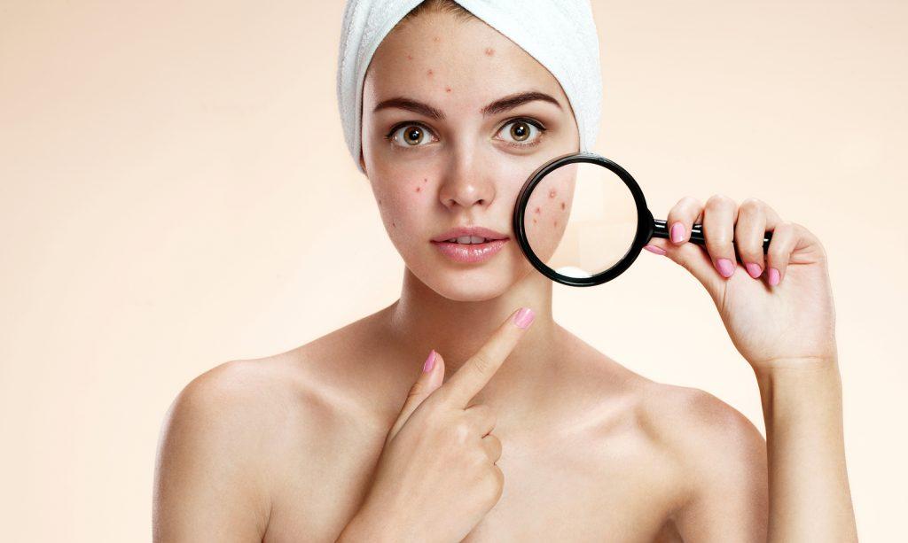 acne san francisco